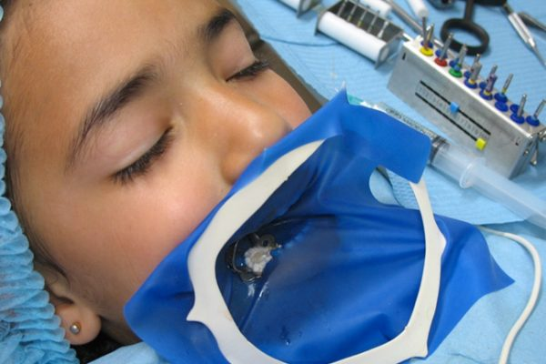perturbateurs endocriniens dans la dentisterie - odenth