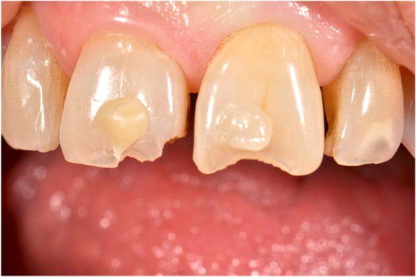 Quels Impacts environnementaux de nos résines dentaires ? - odenth